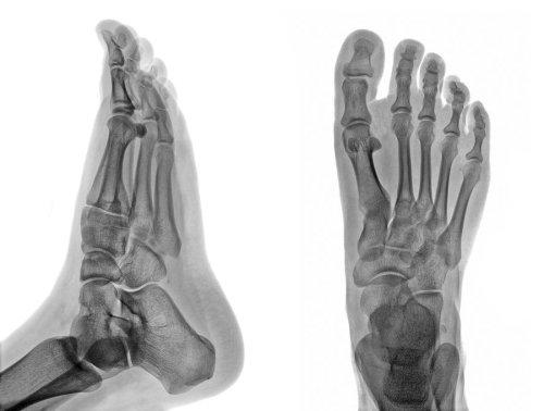 Foot -X-Ray